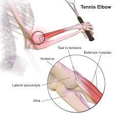 Kell a teniszkönyök gyógyítása